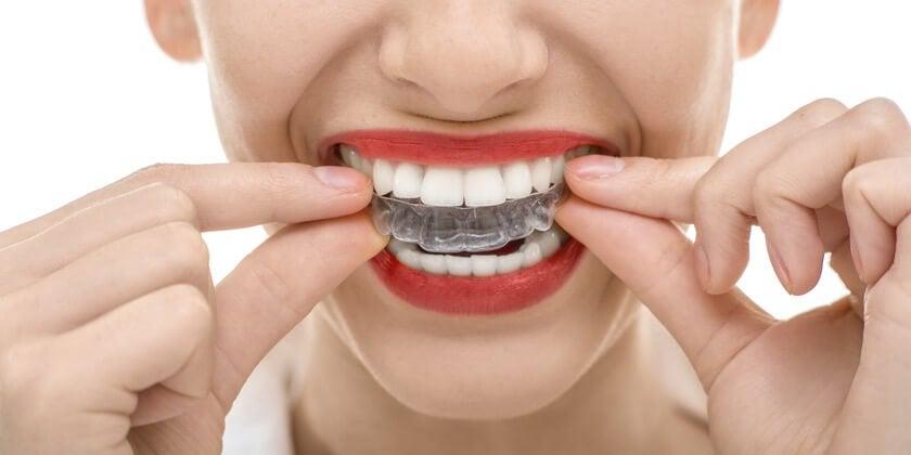 歯ぎしり用のマウスピース