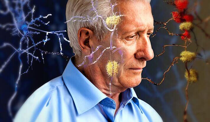 神経に影響を及ぼす