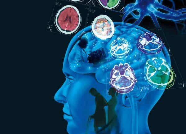 多発性硬化症の原因・症状・治療法