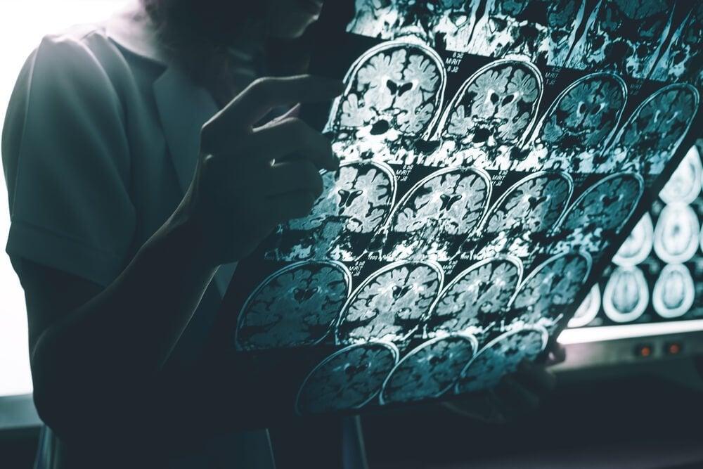 脳スキャンを見る医者