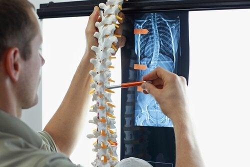側弯症を防ぐ4つのエクササイズ