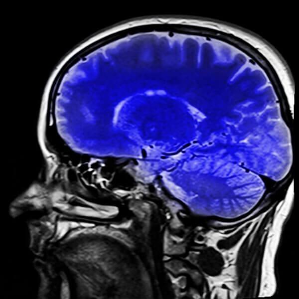 閉じ込め症候群の脳
