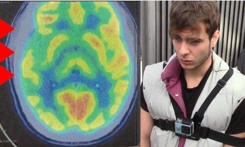 脳の異常とサイコパス