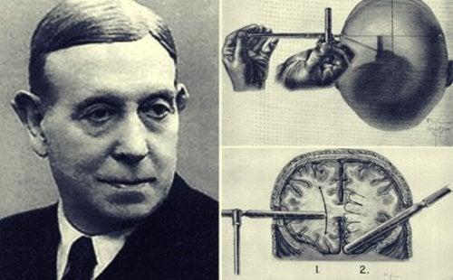 エガス・モニスと驚くべきロボトミーの歴史