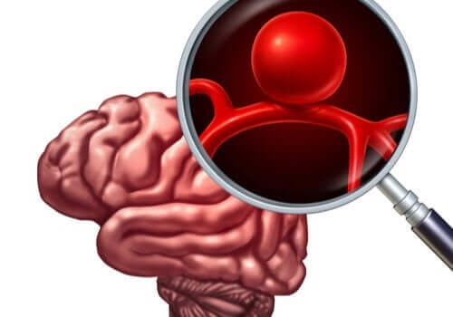 頭蓋内動脈瘤