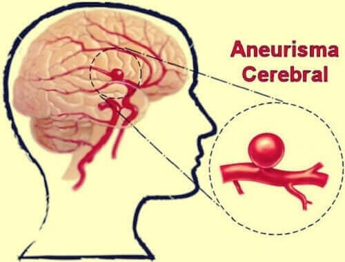 頭蓋内動脈瘤について
