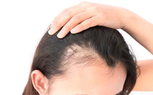 脱毛症 女性 精神的影響