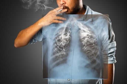 喫煙 COVID-19 合併症 リスク