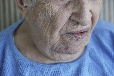 顔面麻痺:その原因と治療について