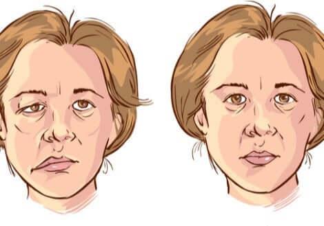 顔面麻痺 原因 治療