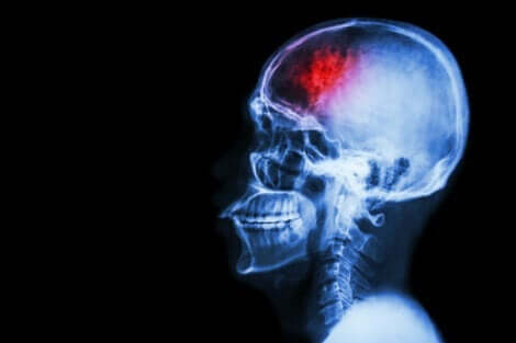 脳卒中 感情 行動 変化