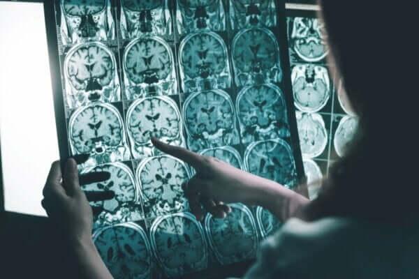 アルツハイマー病患者のための脳波刺激法