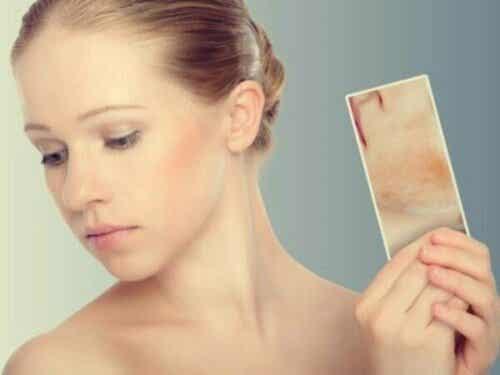 ストレス発疹:肌は感情に反応する?