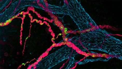 腸管神経細胞