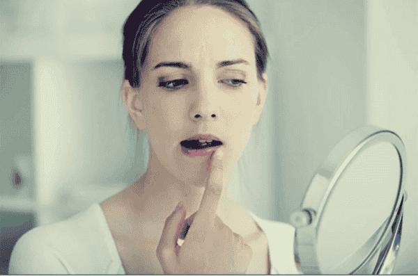 口唇ヘルペスとストレスとの関係性とは?