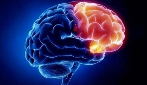 脳 罪悪感 領域